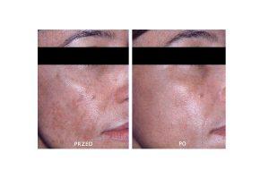 W jaki sposób walczyć z przebarwieniami? Nowoczesne rozwiązania kosmetologiczne